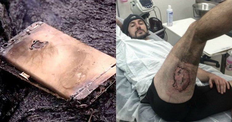iPhone 6 Explodes in Cyclists Pocket With Third-Degree Burns